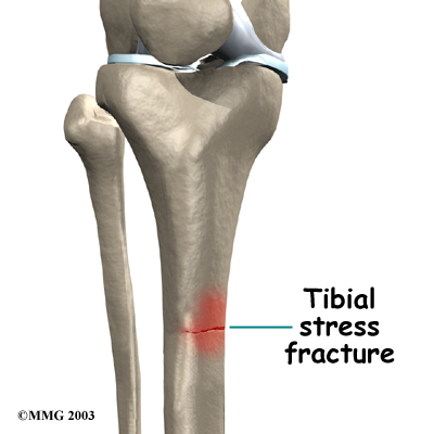 Tibial Stress Fracture