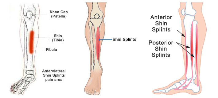 shin splints physical therapy- get better, faster | movement rx, Human Body